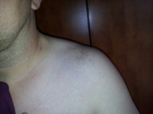 Bruised shoulder from the assault.